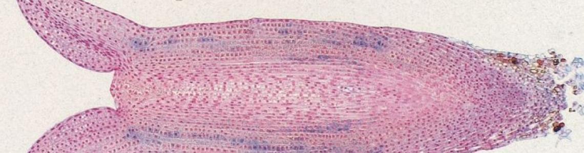 zralé somatické embryo smrku