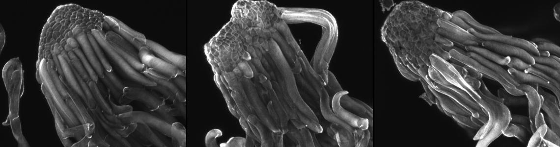 somatická embrya smrku na začátku maturace (Calcofluor white)