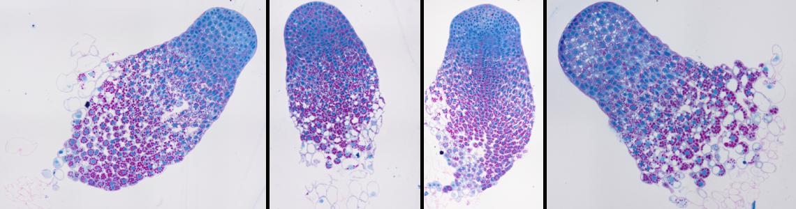 somatická embrya smrku v třetím týdnu maturace (PAS barvení)